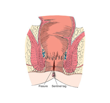 Anal fissure centinal biop posteriorly